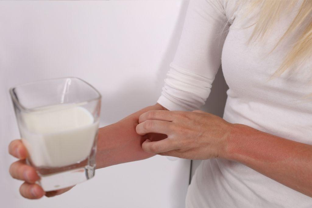 Maitoallergiasta kärsivällä naisella lasi ja ihottuma kädessään.